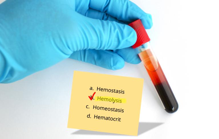 ºMEQU hemolysis